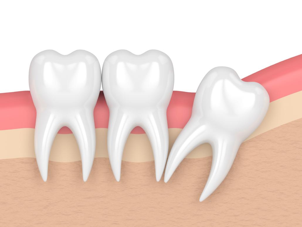 dentiste-givors