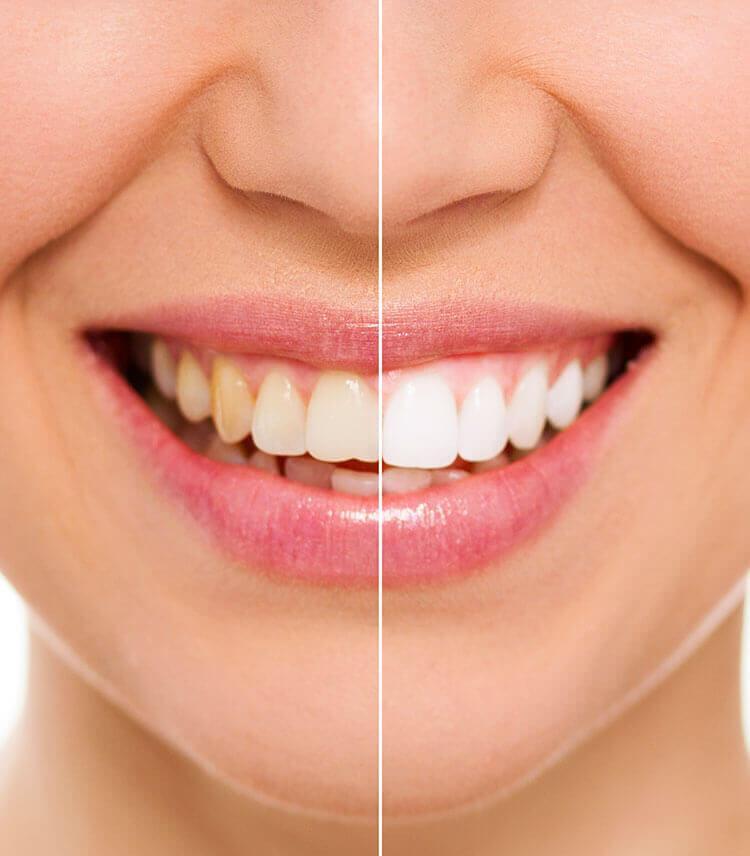 eclaircissement-dentaire-dentiste