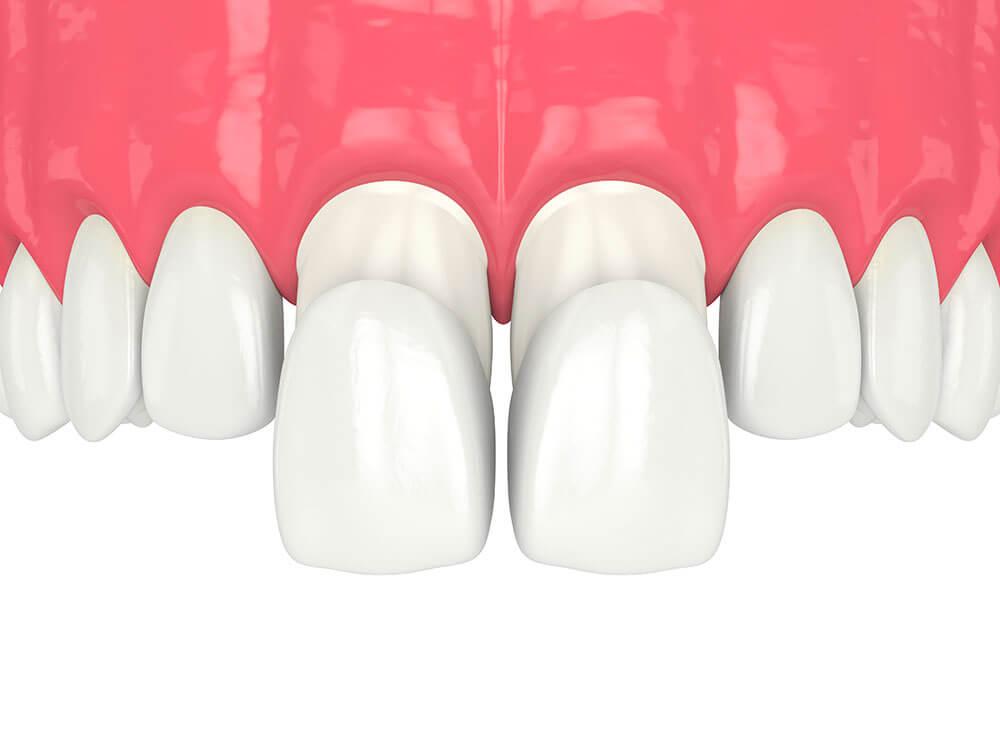 facette-dentiste