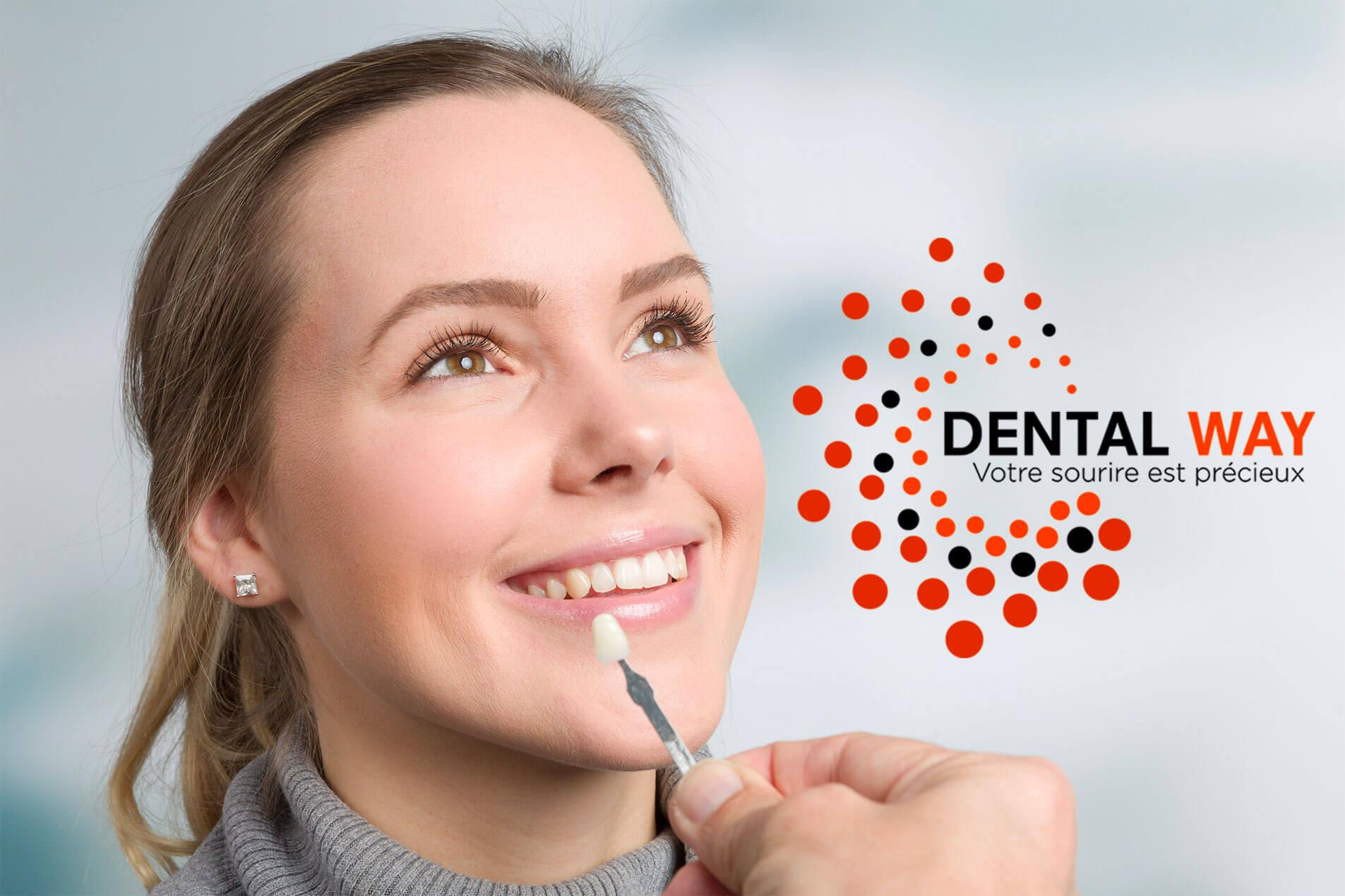 facette dentaire-dentiste beaujolais