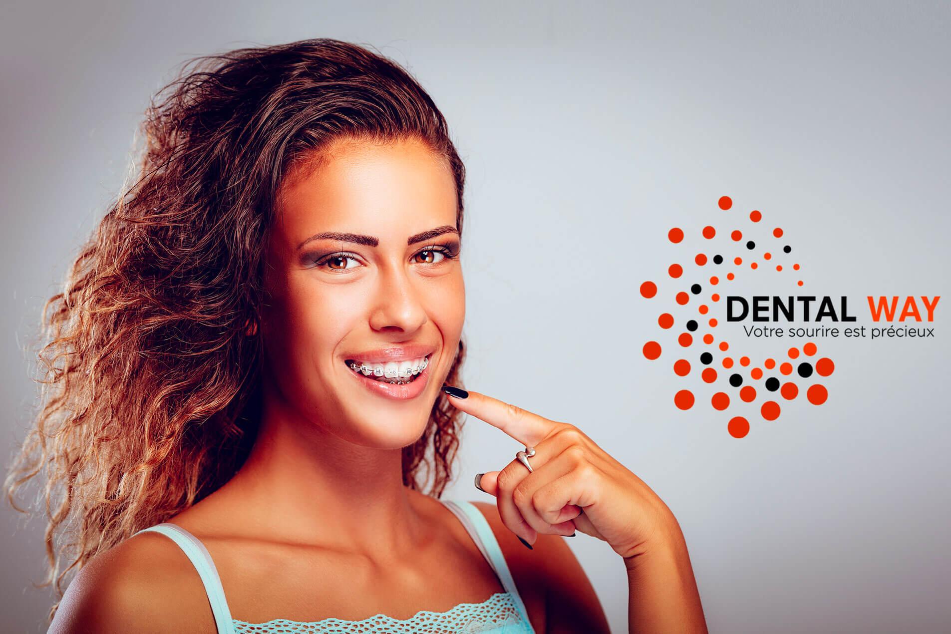 orthodontie multi attache-dentiste beaujolais