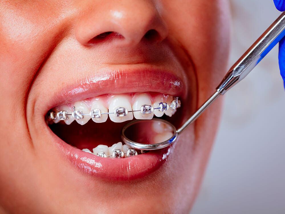 orthodontie multi-attache-dentiste beaujolais