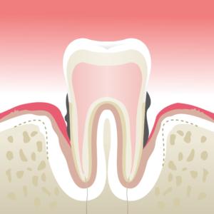 parodontologie givors