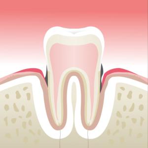 parodontologie velay