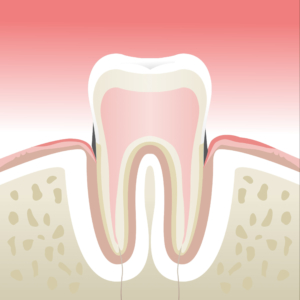 parodontologie st etienne