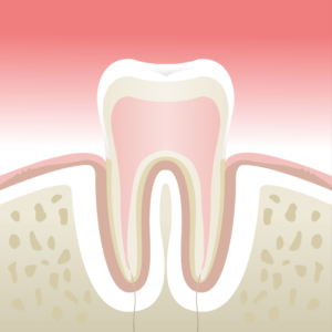 parodontologie beaujolais